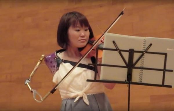 Một cánh tay vẫn chơi đàn violin được